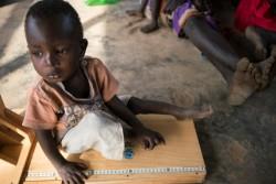 栄養不良の検査の一環で、身長測定をする男の子(南スーダン・アウェル)2017年3月13日撮影