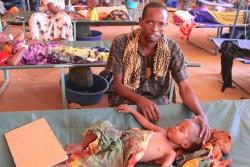 病院で水様性下痢の治療を受ける子どもと、付き添う父親(ソマリア・バイドア)2017年3月15日撮影