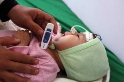 イエメン・サヌアのアル・サビン病院で、診察を受ける1歳のカウラちゃん。生後4カ月の時から治療を受けている。