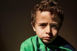 シリア難民のバラルくん(5歳)。