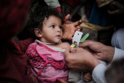 診察を受ける重度の栄養不良に苦しむ子ども(イエメン・サヌア)2017年2月14日撮影