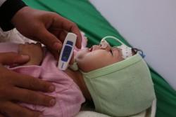栄養不良に苦しむ1歳の女の子 (イエメン・サヌア)2017年3月6日撮影