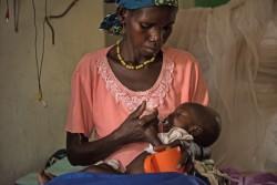 栄養治療食を与えられる9カ月の子ども(南スーダン・ジュバ) 2017年3月15日撮影