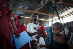 ユニセフが支援する栄養不良検査を受ける子ども (ソマリア・モガディシュ) 2017年4月6日撮影