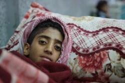 コレラが疑われる症状があり、病院で治療を待つ子ども(2017年5月撮影)