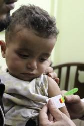 栄養不良の検査を受ける子ども。 (東グータ)2017年10月30日撮影