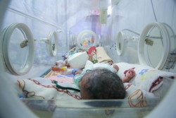 On 28 December 2017, two infants receive treatment in Althawrah Hospital, Sana'a, Yemen.  There is a shortage of incubators in the hospital. More than 3 million children have been born in Yemen since violence ravaging the country escalated in 2015, according to a UNICEF report released on Tuesday 16 January 2018. Children born since the conflict escalated over 1,000 days ago face huge challenges in their physical, cognitive and social development. Women in Yemen often have to give birth in deplorable conditions, with pregnant women often already sick or malnourished themselves. Babies are being born premature and sick, with many not surviving the first days and weeks of life. Even before the conflict escalated in 2015, Yemen was the poorest country in the Middle East, with many children and their families relying on humanitarian support to survive. Yemen has suffered decades of under development, economic decline, frequent bursts of conflict and the destruction of fragile public infrastructure and services.