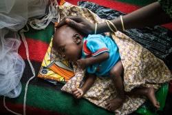 栄養不良の赤ちゃん(ニジェール)。(2017年2月撮影)