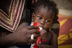 ユニセフから支援された治療食を食べる重度の急性栄養不良に苦しむ女の子(マリ)。(2017年8月撮影)