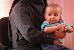サヌアの病院で栄養不良の治療を待つ子ども。(2018年6月27日撮影)