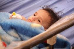 On 30 October 2018 in Yemen, a baby who is severely malnourished and receiving treatment in the Dhola Hamdanh hospital in Sana'a. UNICEF Regional Director for Middle East and North Africa Geert Cappelaere visited Yemen from 29 October through 1 November 2018.  As of 30 October 2018, over 11 million children – 80 per cent of all children in the country – require humanitarian assistance, due to the impact of the ongoing conflict.  Worsening years of underdevelopment, attacks against civilians and civilian infrastructure and lack of salary payments for most civil servants have pushed basic services for children to the brink.  Children face food shortages, disease, displacement and an acute lack of access to basic social services.  One out of three children in Yemen is at risk of acute malnutrition.