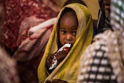 支援物資の治療食を食べる栄養不良に苦しむ子ども。(チャド/2018年6月撮影)