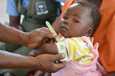 ジンバブエの保健所で上腕メジャーをつかって栄養状態のチェックを受ける子ども