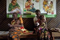 ベンティウにある病院で、重度の急性栄養不良の治療を受けている1歳の息子を抱く母親。