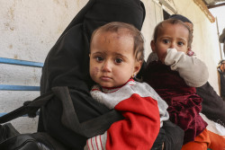 """On 16 January 2019 in the Syrian Arab Republic, twins Hasnaa and Hawraa are 9 months old. Together with their mother and two siblings, they fled violence in Susa village in Hajin sub-district of Deir-ez-Zor governorate, northeastern Syria. The family made an arduous journey to Al-Hol camp around two weeks ago. """"We were forced to displace a few times, but this time was the worst. I walked for 100 km, carrying my twins and watching over my other children,"""" says their mother, Halima. In February 2019 in the Syrian Arab Republic, despite a reported respite in violence in southeast Deir-ez-Zor, hundreds of families continue to flee to Al-Hol camp, around 300 kilometers to the north. Having lived without basic services for years and made the arduous journey to the camp, vulnerable children are in even more danger. The tented camp now hosts almost 50,000 internally displaced people, well beyond its capacity. UNICEF is supporting four mobile health teams of doctors and nurses, as well as a fixed clinic, working around the clock in the camp and reception centers to provide children and mothers with much-needed healthcare services. The teams are screening children for malnutrition and common illnesses, providing necessary nutritional supplements and referring cases to hospitals in Hassakeh. More than 87 children are currently receiving treatment for severe acute malnutrition (SAM) and another 440 for moderate acute malnutrition (MAM). UNICEF also supports families at Al-Hol through the provision of safe drinking water, the establishment of latrines, shower units and water tanks, the distribution of hygiene items and winter clothes for children and the establishment of child and adolescent friendly spaces and self-learning centres."""