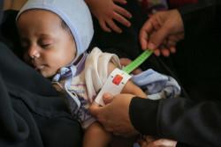 上腕計測メジャーを使い、栄養不良の検査を受ける生後7カ月のサリムちゃん。