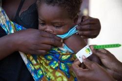 モザンビークで、栄養不良の検査を受ける1歳のマルケス・アントニオちゃん。(2019年4月撮影)